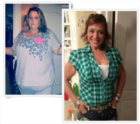 gastric bypass testimonials success stories with before amy gastric sleeve weight loss