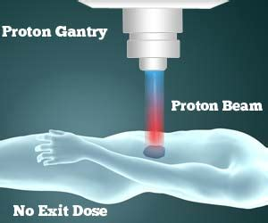 Proton Treatment For Cancer Reviews by Proton Beam Therapy For Cancer Treatment