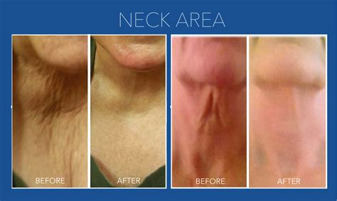 Rejuvapen For Neck Before And After | what is micro needling fast facts on the treatment for