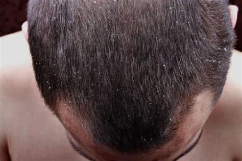 porque duele el cuero cabelludo tratamiento de la psoriasis del cuero cabelludo con