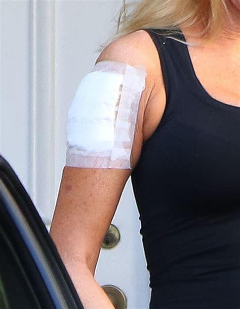 tattoo removal clinic in kuala lumpur melanie griffith in melanie griffith leaving a tattoo