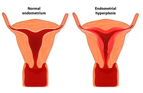 Shed Uterine Lining All Once by 100 Shedding Of Uterine Lining 5 Signs From Your
