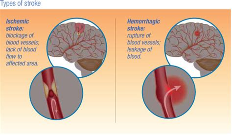 Herbal Carefor Stroke salinas valley memorial healthcare system treatments types