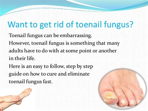 how to cure toenail fungus at home fast nail ftempo