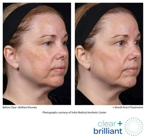 clear brilliant 174 skin rejuvenation