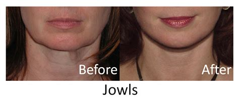 best haircut for joules and sagging neck for facial jowls xxx albums
