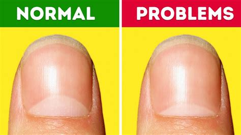 Pictures Of Nails That Show Health Problems 13 health problems your nails warn you about