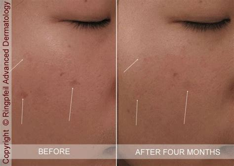tattoo removal injection 20 best images about cosmetic dermatology on