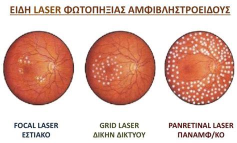 grid pattern laser photocoagulation laser photocoagulation eye day clinic