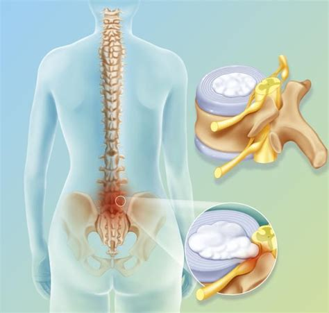 inversion table cervical disc herniation bulging and slipped disc symptoms the o jays back