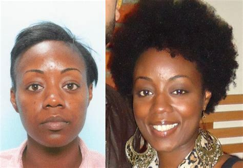 hair transplant for black women african american female hair transplant testimonial