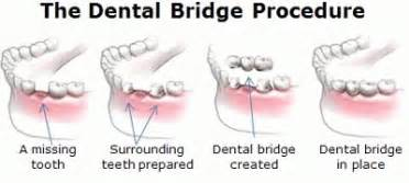 how to fix a missing tooth at home dental bridge restoration to fix gaps missing teeth