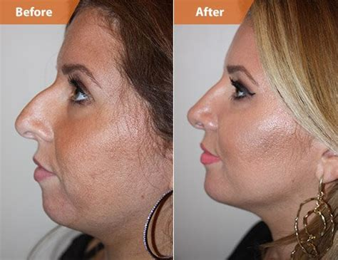 what should i expect when getting a chin length short wavy bob chin implants new york nyc cheek augmentation surgeon