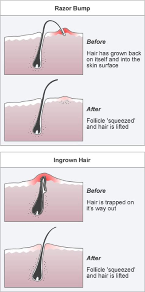does waxing cause ingrown hairs ladies treatments