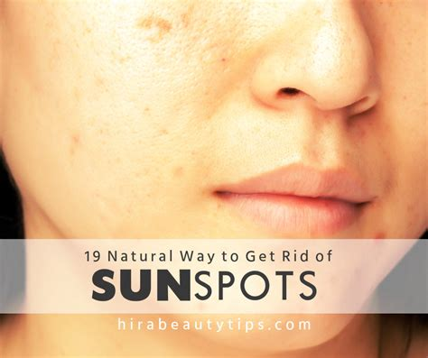 how do i get rid of my old couch 19 natural ways to get rid of sunspots on face
