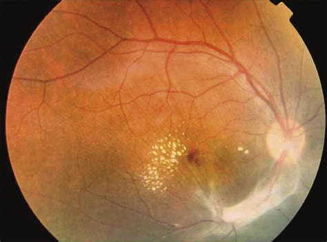 outbreak  acquired ocular toxoplasmosis involving