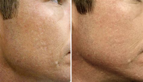 3x Laser Rejuvenation Treatment collagen induction therapy cit cosmedical skin