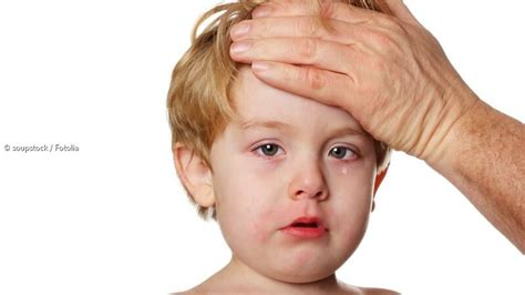 fieber bei kindern ab wann zum arzt fieber bei kindern wirkung und linderungsm 246 glichkeiten
