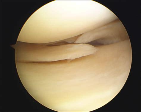 menisco interno rotura de meniscos