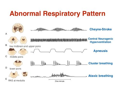 breathing pattern video types of abnormal breathing patterns pictures to pin on
