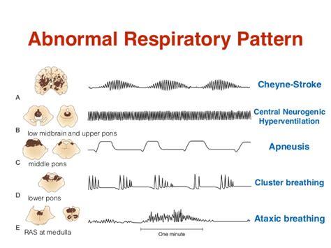 breathing pattern video emergency in neurology