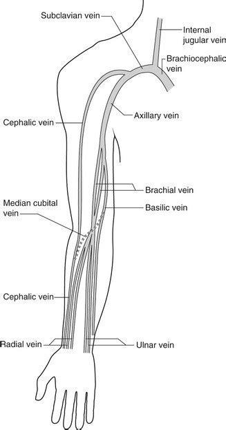 Duplex assessment of deep venous thrombosis and upper-limb