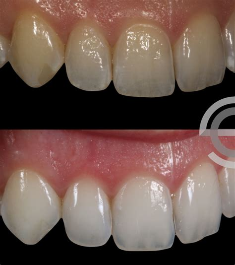 icon white spot treatment staines rothley lodge dental