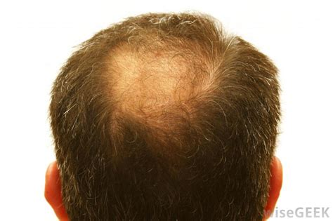 zzcover bald spot in the middle of hair download hair loss sudden bald patch on head free