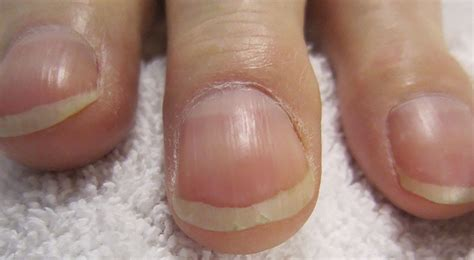 nail beds what do your nails tell about your health the royale