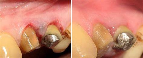 tattoo removal cream in philippines periodontics fotona