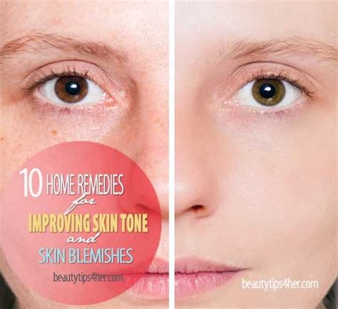 10 home remedies for improving skin tone and blemishes