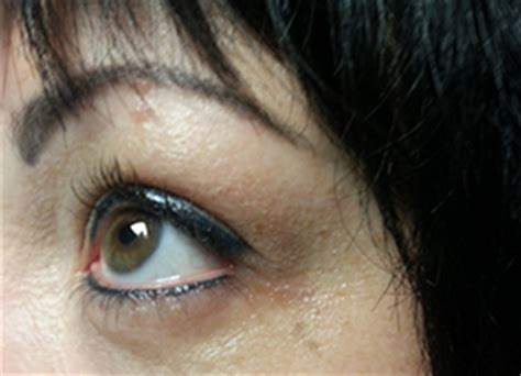tattoo eyebrows tucson lasting impressions permanant makeup tattoo removal