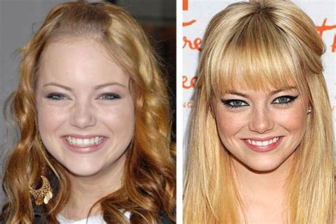 bergen williams weight loss emma stone before and after plastic surgery photos