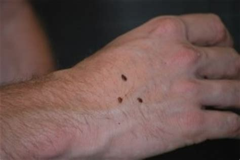 Diy Bed Bug Heat Treatment by Bed Bugs Azex Pest Solutions Bed Bug Heat And Termite