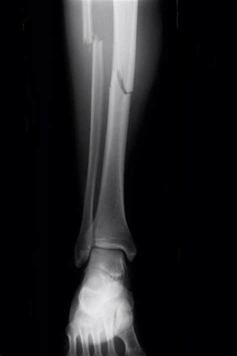 broken leg broken leg causes symptoms x treatment recovery bone disease