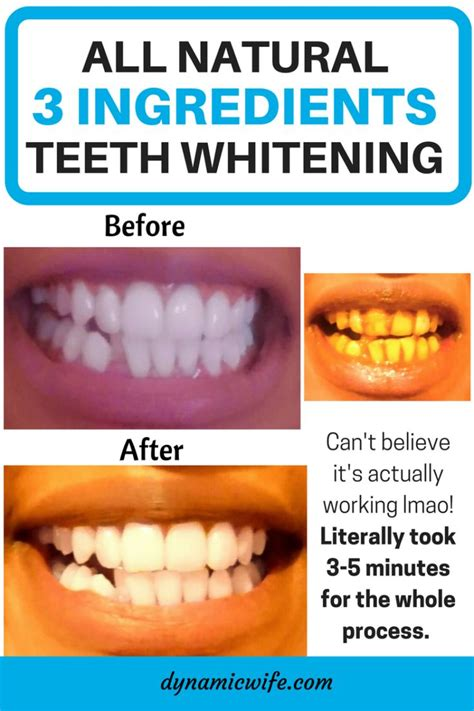 17 best ideas about instant teeth whitening on