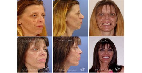 15 best images about before after makeup makeovers on extreme makeover featuring dr garth fisher