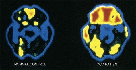 neurobiology  nonpsychotic illnesses basicmedical key