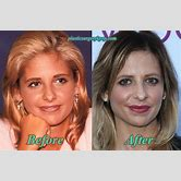 sarah-michelle-gellar-nose-job-before-and-after