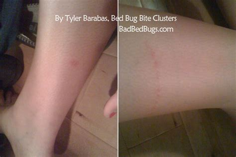 can bed bugs bite through clothes can a bed bug bite through clothes bedding sets