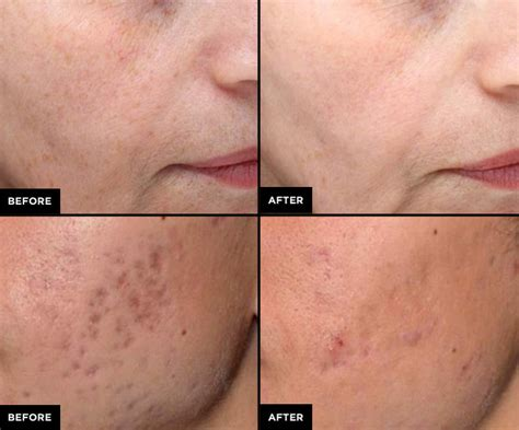 the post summer skin revitalizer that you need now picosure 174