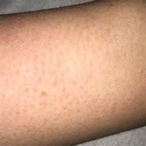 juckende beine nach duschen trockene pickelige haut an armen und beinen gesundheit