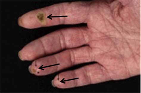 Pictures Of Scleroderma Rash