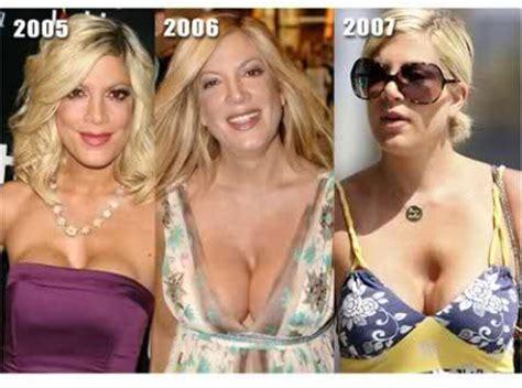 famosas operadas del pecho al antes y el despues