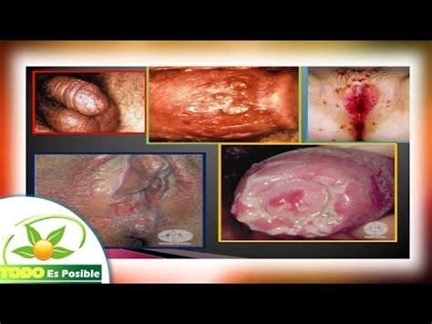 imagenes fuertes de enfermedades venereas las enfermedades venereas youtube