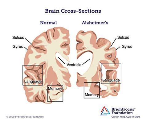 test memoria alzheimer brain with alzheimer s disease brightfocus foundation