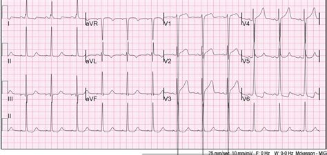 lvh pattern dr smith s ecg blog is this acute ischemia more on lvh