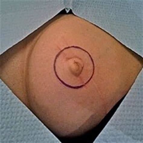 nipple tattoo after mastectomy photos carolyn elliott cpcp permanent makeup