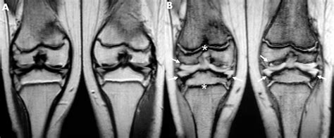 below knee utation a recurrent r718w mutation in comp results in