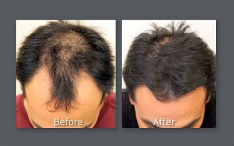 hair restoration hair transplant neograft orlando newport plastic surgery cosmetic surgeon orange county